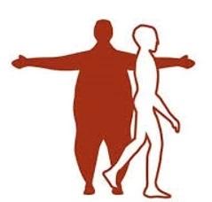 Tüp Mide Ameliyatını Kimlere Yapalım – Ankara- Op.Dr.Bilgehan Sonbahar